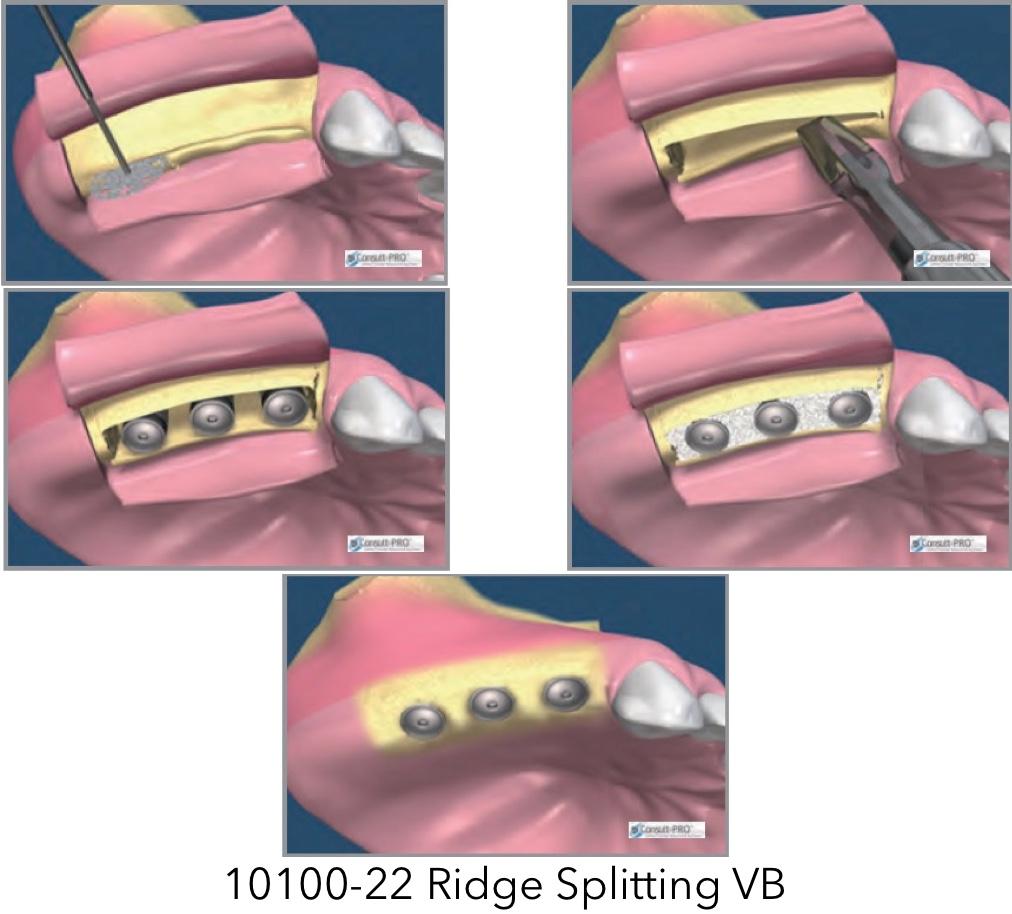 10100-22 Ridge Splitting VB